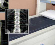 Giornata mondiale osteoporosi, quali sono i messaggi fuorvianti